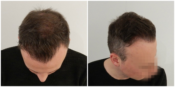 stages of hair transplant growth timeline